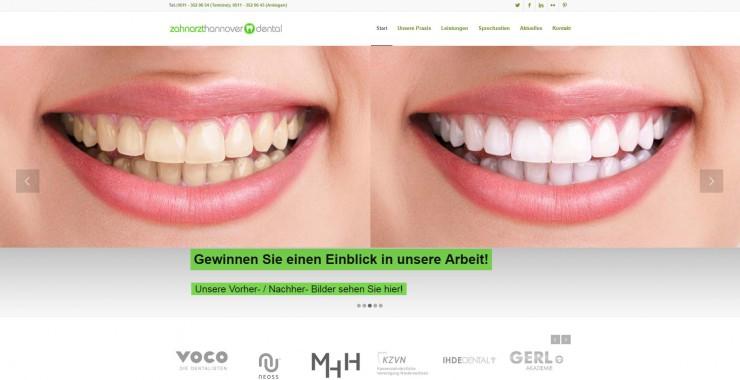 Six Month Smiles - Die neue Behandlung für gerade Zähne