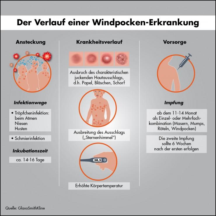 Windpocken: Zahl der Erkrankungen immer noch zu hoch