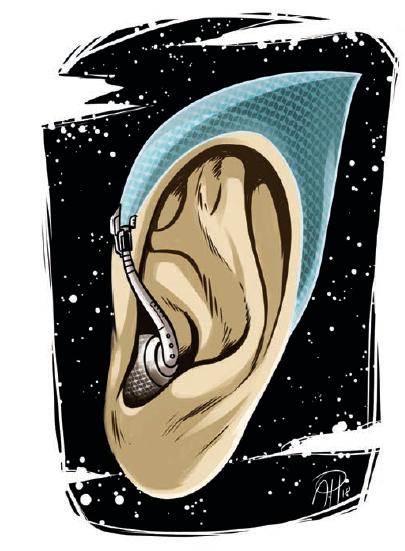 Wegweisende Vernetzung bei Cochlea-Implantaten