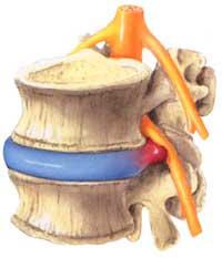 Neuer natürlicher Schmerzstiller Palmitoylethanolamid (PEA) vermindert Schmerzen bei Bandscheibenvorfall